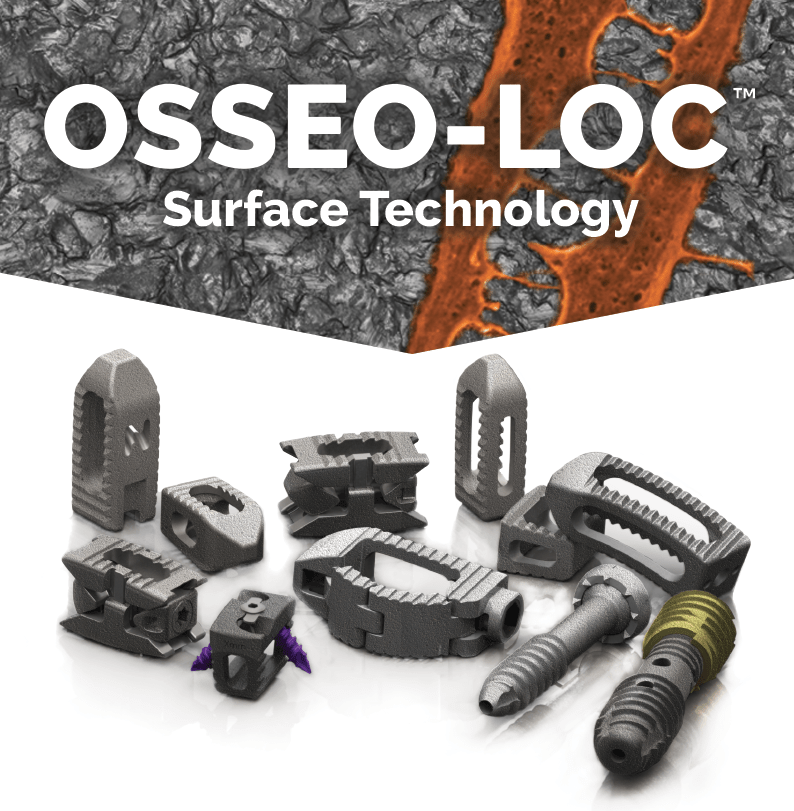 OSSEO-LOC™ ADDITIONS